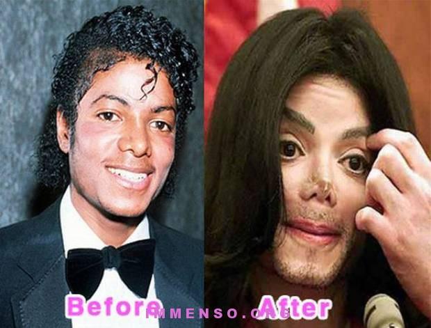 vip prima e dopo botulino 16