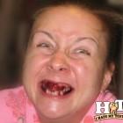 denti brutti 08