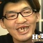 denti brutti 15