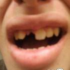 denti brutti 16