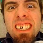 denti brutti 17