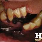 denti brutti 23