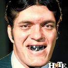 denti brutti 24