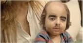 bambino piu brutto del mondo video virale