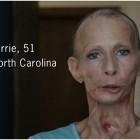 malattie fumatori video impressionanti