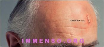 sardegna tumore pelle 350x160