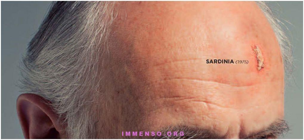 sardegna tumore pelle