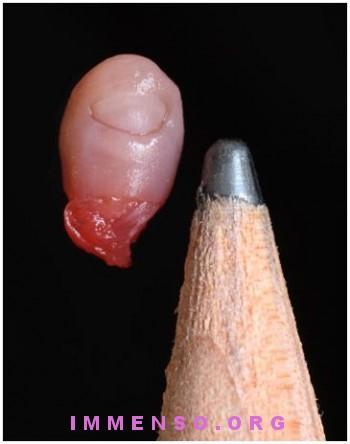 foto anti aborto 2