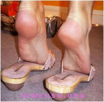 rimedi puzza piedi