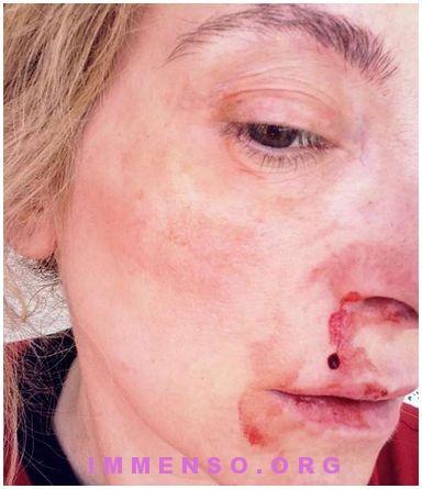 massimo di cataldo violenza donne