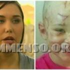 donna morde cane e salva figlia