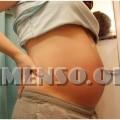 gravidanza varicella