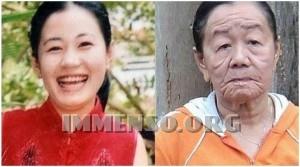 sindrome di werner invecchiamento