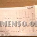 elettrocardiogramma visita medica